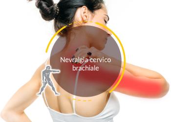 Nevralgia cervico brachiale