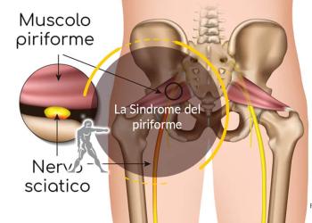 La Sindrome del piriforme