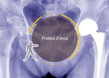 Protesi d'anca