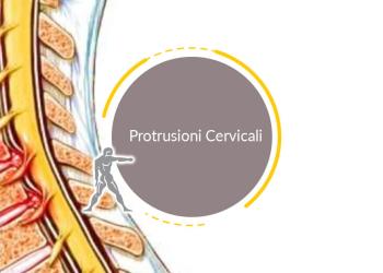 Protrusioni Cervicali