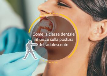 Come la classe dentale influisce sulla postura dell'adolescente
