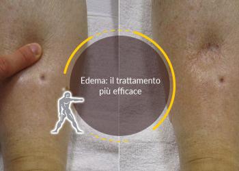 Edema: il trattamento più efficace