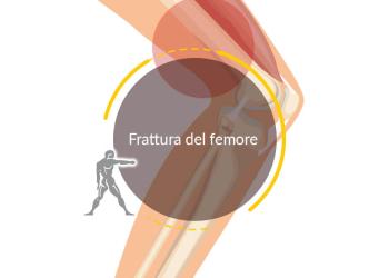 Frattura del Femore
