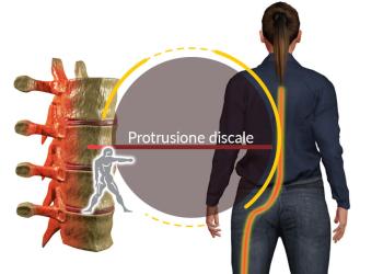 Protrusione Discale