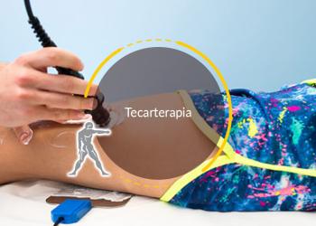 Tecaterapia