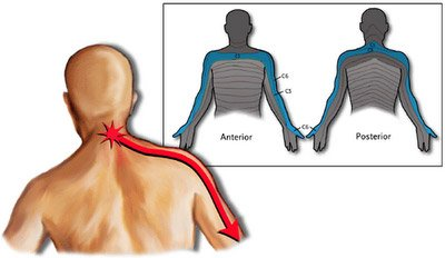 nevralgia-cervico-brachiale