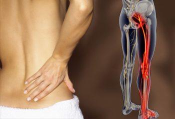 sciatalgie-sintomi