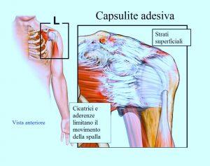 capsulite-adesiva