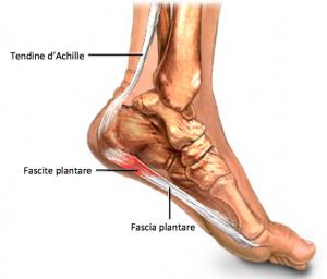 dolore-pianta-del-piede