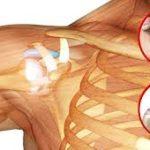 Periartrite scapolo omerale :sintomi e terapia