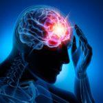 Cefalea: sintomi  cura terapia