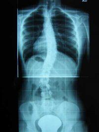 radiografia della colonna vertebrale