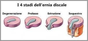 tipologie di ernia discale