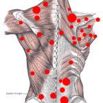 Trigger points: diagnosi, sintomi e terapia