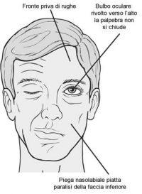 segni della paralisi facciale