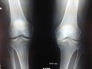 radiografia protesi ginocchio
