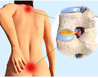 sintomi protusioni discali
