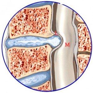 protusioni-cervicali