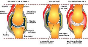 segni dell artrite reumatoide
