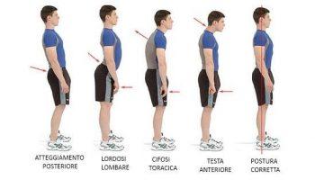 atteggiamenti posturali napoli