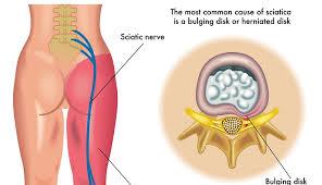 Rachide Lombare : sintomi, esercizi, rimedi e terapia..