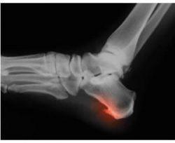 radiografia sperone calcaneare