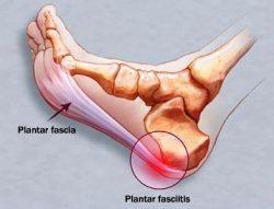 sintomi fascite plantare