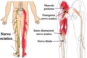 nervo-sciatico-infiammato