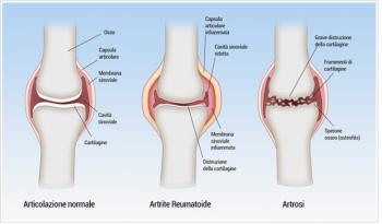 tre fasi dell'osteoartrite