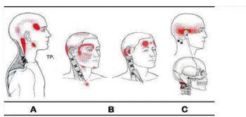 sintomi contratture cervicale dolore riferito
