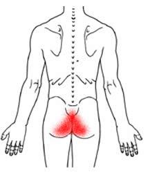causa del dolore sacrale