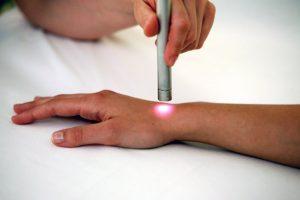 fisioterapia per infiammazione tendini del polso
