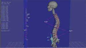ricostruzione colonna vertebrale