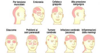 sintomi del dolore alla testa