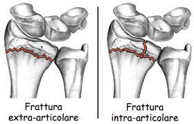 tipologie di fratture di colles