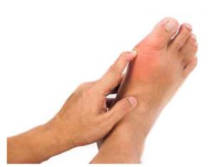 dolori-ai-piedi
