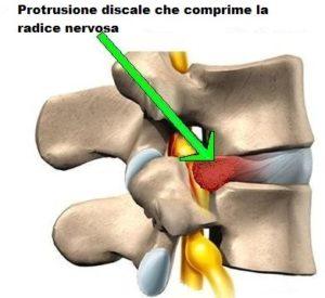 protrusione-discale
