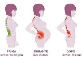 Physio per il dolore alla cintura pelvica