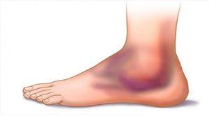 distorsione alla caviglia ricorrente