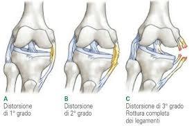 gradi lesioni legamenti ginocchio