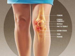 Ginocchio gonfio (versamento): dolore, altri sintomi, cause e cura