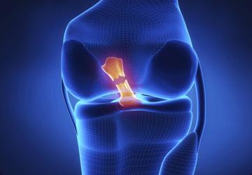 lesione del legamento-crociato-anteriore