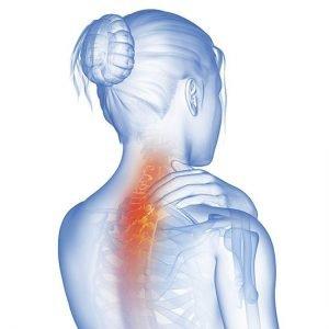 dolore al collo causato dallo stress