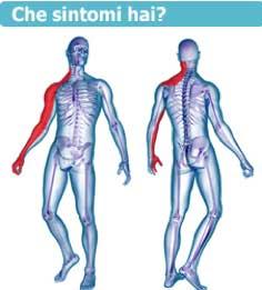ernia cervicale sintomi