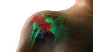 sintomi lesione cuffia dei rotatori