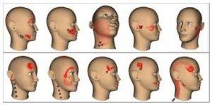 disfunzione-temporo-mandibolare
