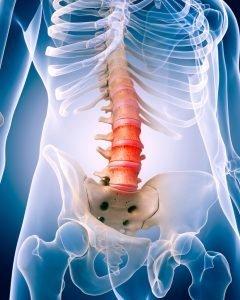 artrosi delle faccette articolari