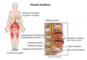 stenosi vertebrale lombare
