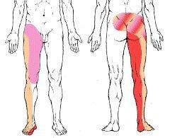 dolore e formicolio alla gamba