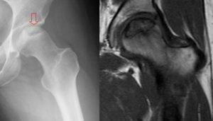 osteonecrosi della testa del femore
